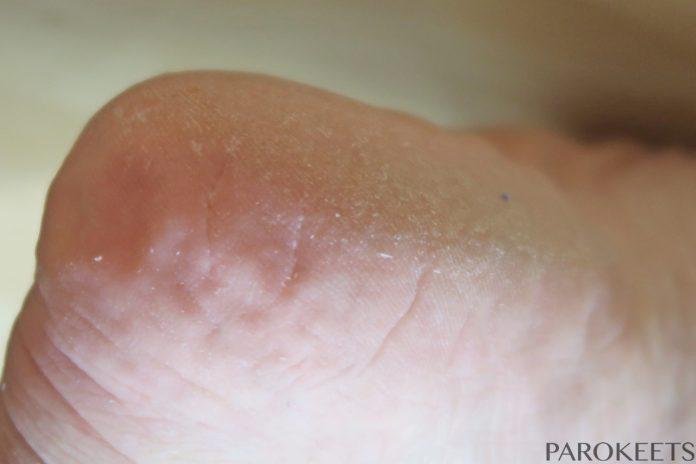 Baby Foot stanje pred levitvijo