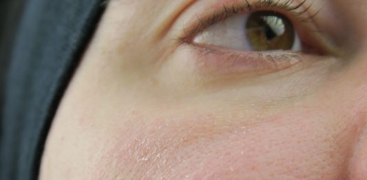 Boj proti luskasti koži - pred nanosom by Gabi Gejba Parokeets