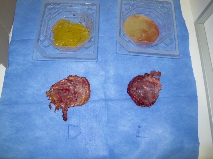 Počeni vsadki prsi - odstranitev silikonskih vsadkov