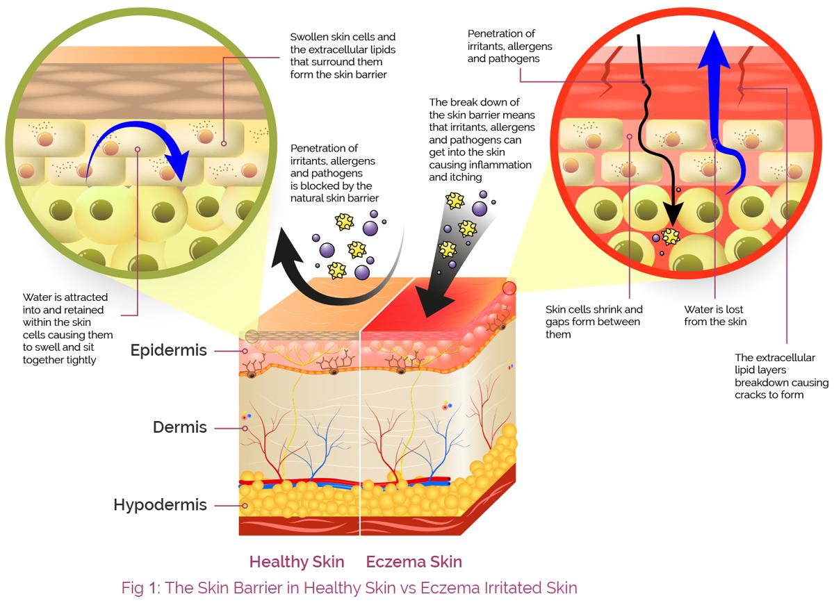 Kožna bariera pri normalni koži vs. dermatitis koži by Aproderm.com